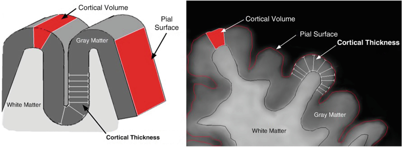 Cortical Thickness, Fig. 1