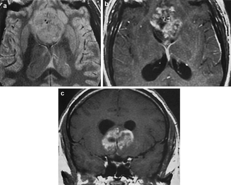 Glioblastoma Multiforme, Fig. 1