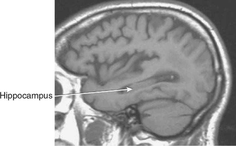 Hippocampus, Fig. 1