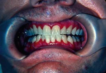 Oral Mucosal Lesions   SpringerLink