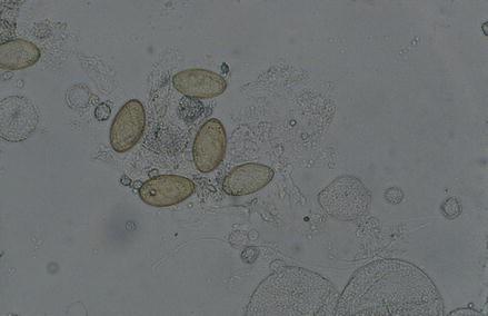 Opisthorchis felineus (syn. tenuicollis), Fig. 3