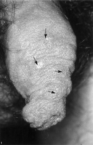 Scabies, Fig. 1