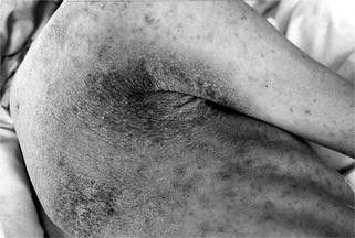 Scabies Crustosa, Fig. 1