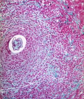 Schistosoma Granuloma, Fig. 1