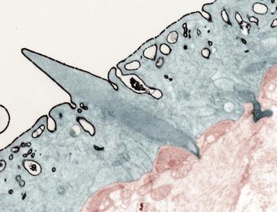 Schistosoma: Integument/Surface Coat, Fig. 1