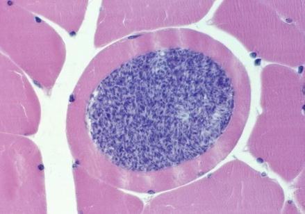 Sarcocystis Species: Humans as Intermediate Hosts, Fig. 1