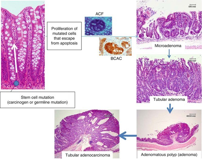 Colon Cancer Carcinogenesis In Human And In Experimental Animal Models Springerlink