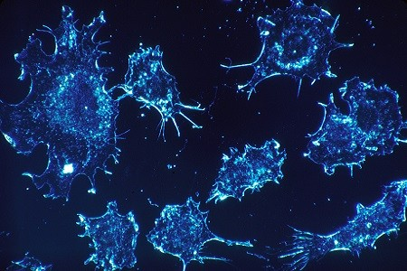 Cancer cells correct size