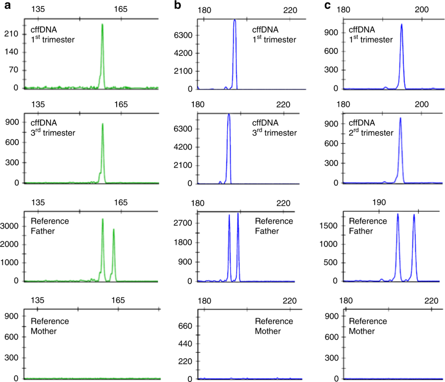 Electropherogram Results Of The Positive Detection Paternally Transmitted Alleles In Maternal Blood Collected During First And Second Or Third