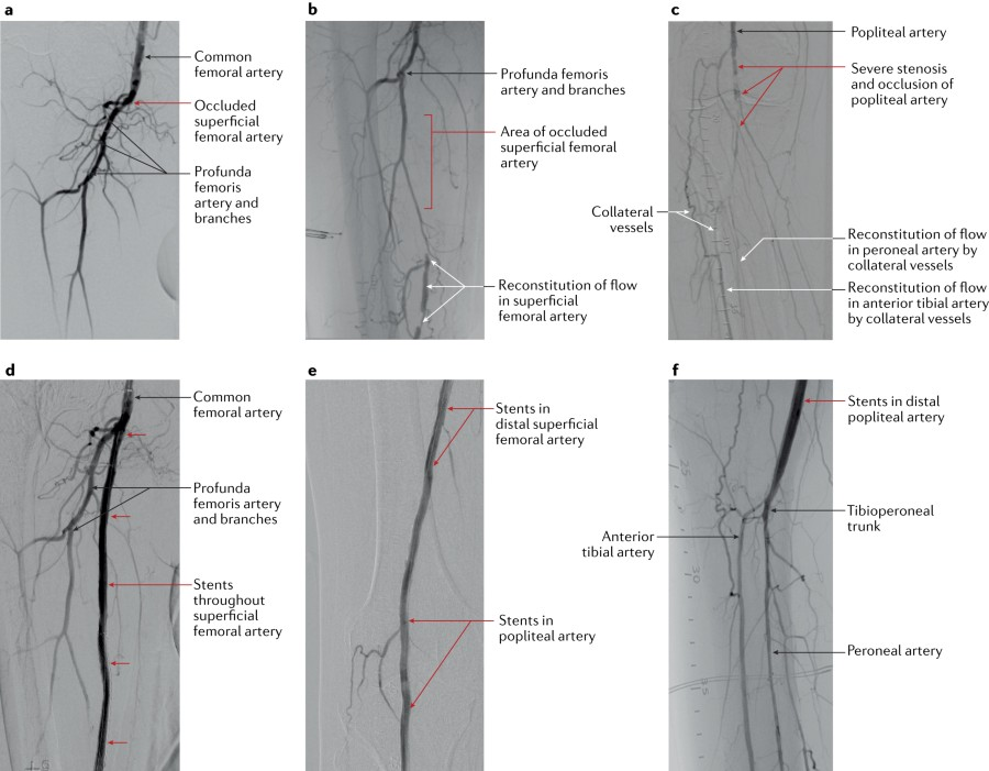 Fig. 3: Femoropopliteal intervention for PAD.   Nature Reviews ...