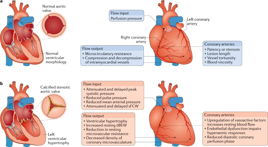 Fig 2 The Principal Determinants Of Coronary Blood Flow Nature