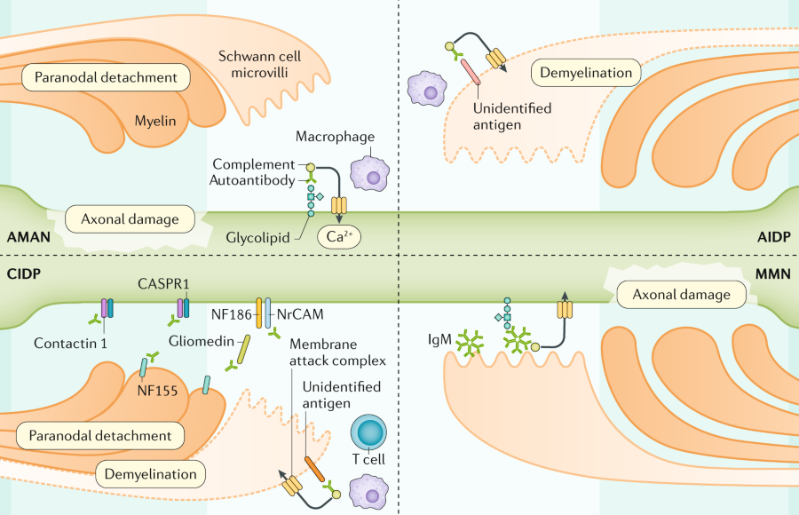 Autoantibodies can cause axonal damage or demyelination via multiple pathways. In acute motor axonal neuropathy (AMAN), autoantibodies can induce the ...