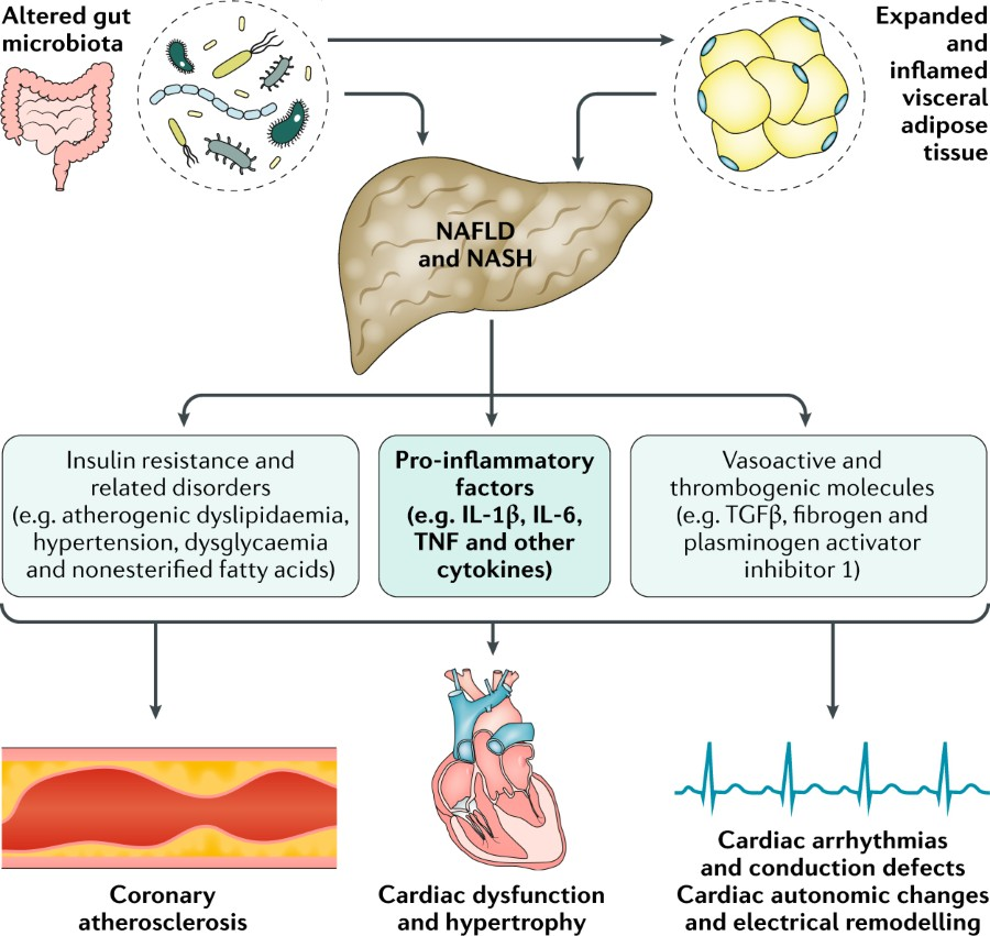 Fig 2 Role Of Low Grade Systemic Inflammation In The Development