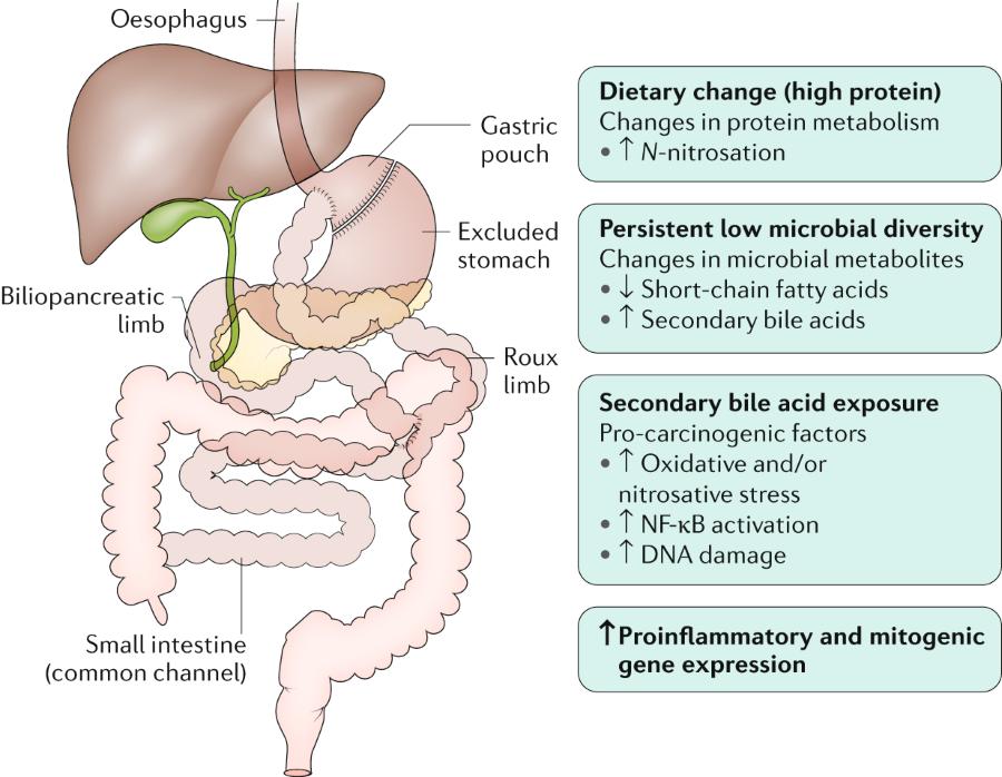 Fig 1 Possible Intestinal Pro Carcinogenic Factors After Roux En Y