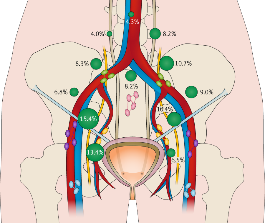 Fig 2 Location Of Metastatic Deposits From Muscle Invasive Bladder