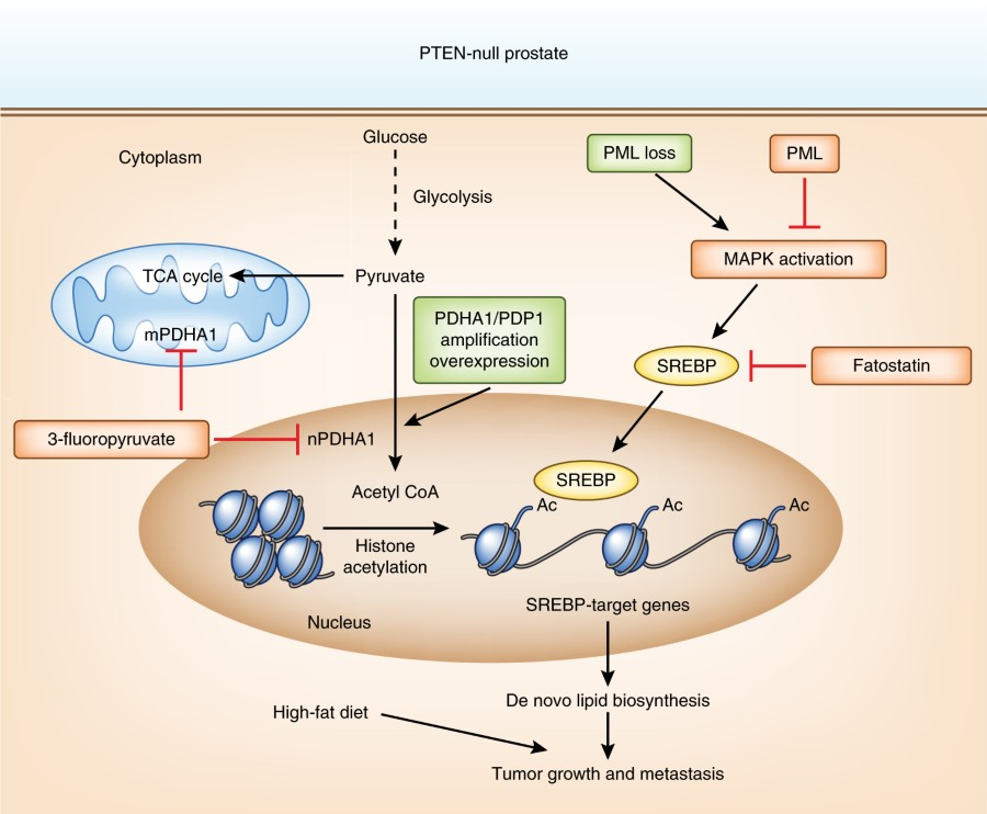 Fig 1 schematic diagram showing two genomic drivers of aberrant both pathways target the srebp dependent lipogenic program at the downstream level frequent amplificationoverexpression of pdhda1 seen in cap affects ccuart Image collections