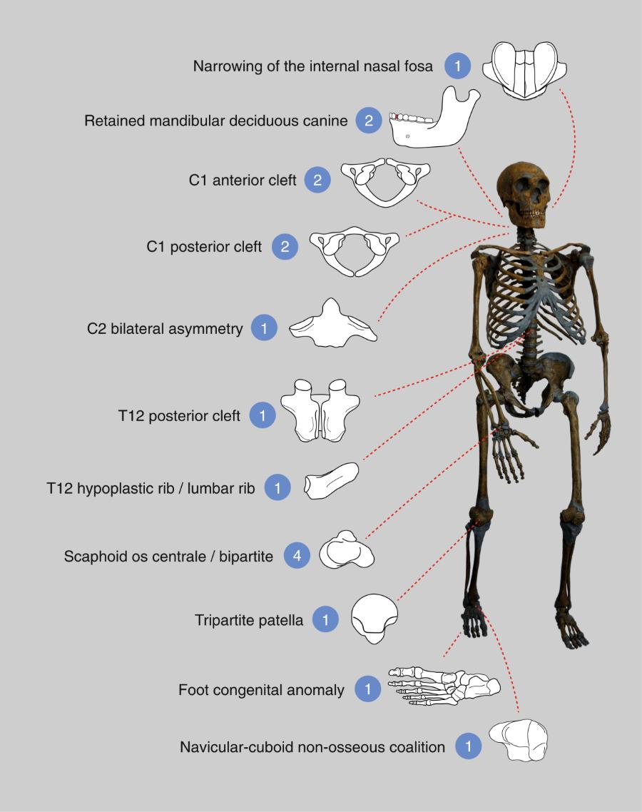 Resumen de las 17 anomalías congénitas observadas en el grupo familiar neandertal del Sidrón.El número de de veces que se ha observado cada patología se muestra en los círculos azules, junto con una representación esquemática de la patología. Foto: Ríos et alii, Nature Scientific Reports.