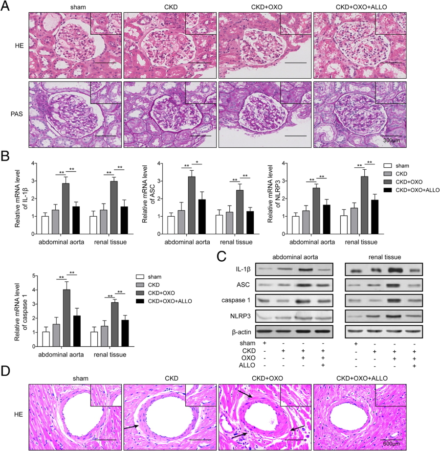 Uric acid regulates NLRP3/IL-1β signaling pathway and