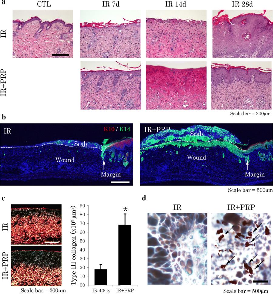Platelet-rich plasma activates AKT signaling to promote