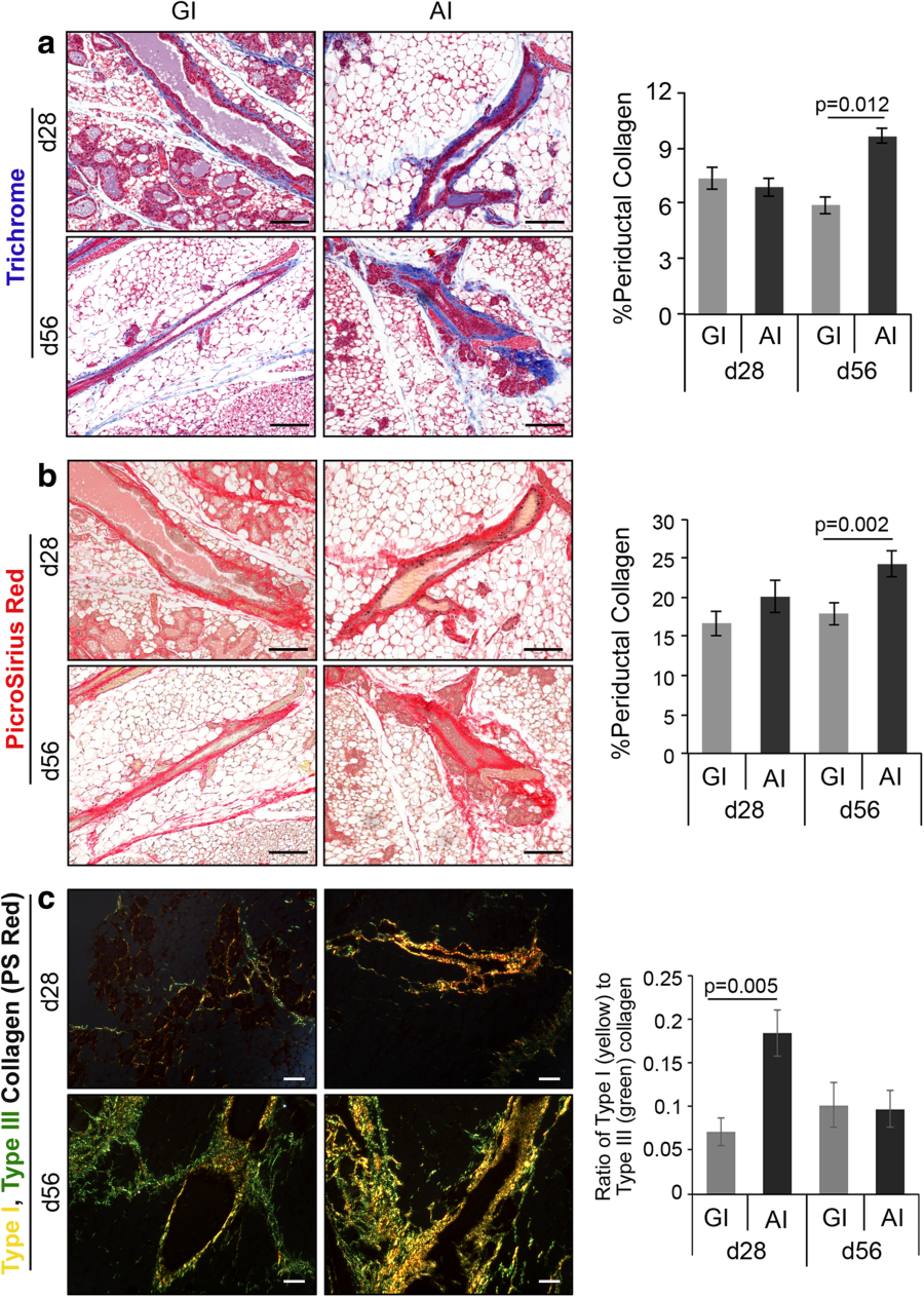 Abrupt involution induces inflammation, estrogenic signaling, and