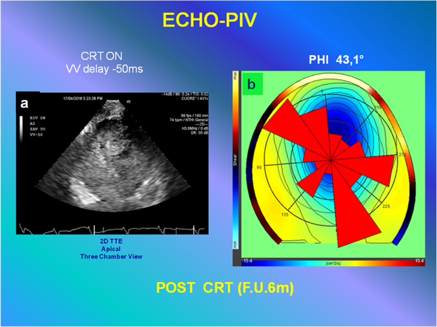 Combined flow-based imaging assessment of optimal cardiac