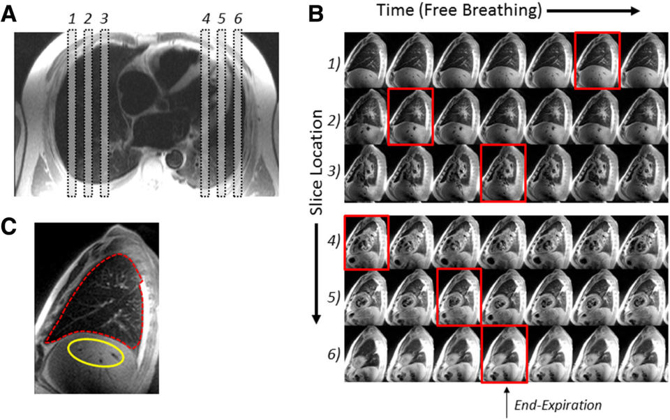 Featured article: QuantificationOfLung