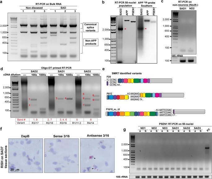 Somatic APP gene recombination in Alzheimer's disease and normal