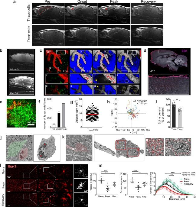 β-Synuclein-reactive T cells induce autoimmune CNS grey