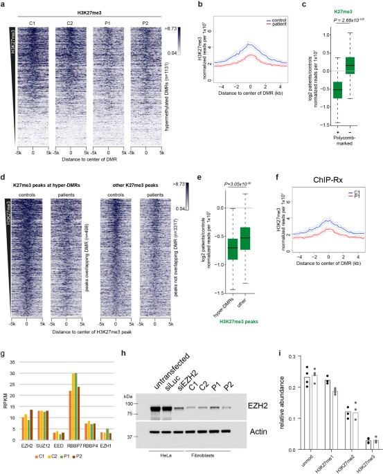 Gain-of-function DNMT3A mutations cause microcephalic