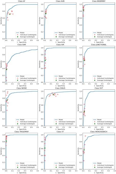 Cardiologist-level arrhythmia detection and classification