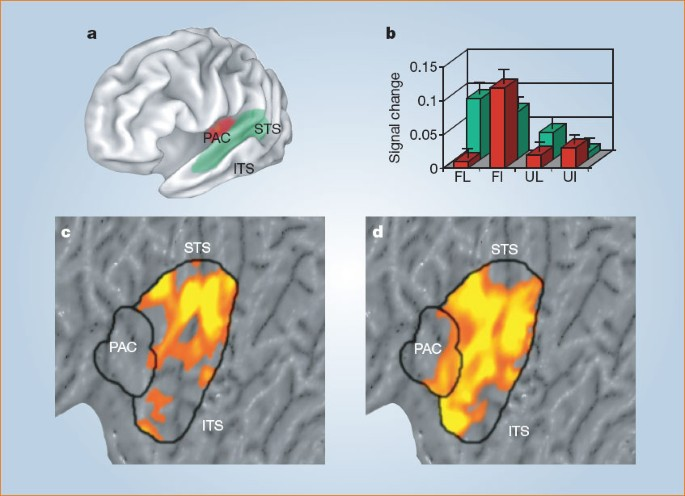 Sound of silence activates auditory cortex   Nature
