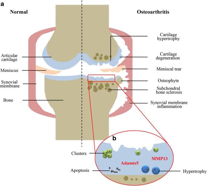 cum se tratează artroza genunchiului 3 grade retete pentru bretele pentru durerile articulare