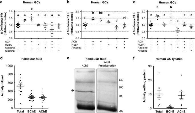 Readthrough Acetylcholinesterase Ache R And Regulated