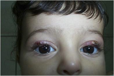 Eyelid leishmaniasis masquerading as chalazia | Eye