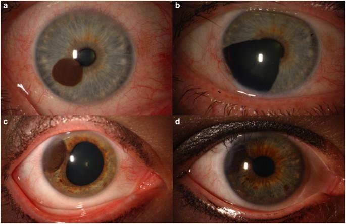 Uveal Melanoma Relatively Rare But Deadly Cancer Eye