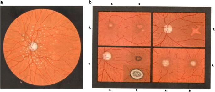 Elusive Drusen And Changing Terminology Of Amd Eye