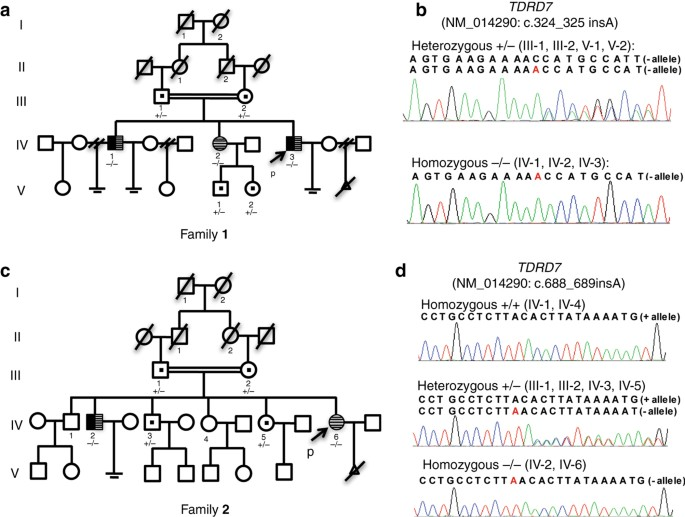 Loss-of-function mutations in TDRD7 lead to a rare novel