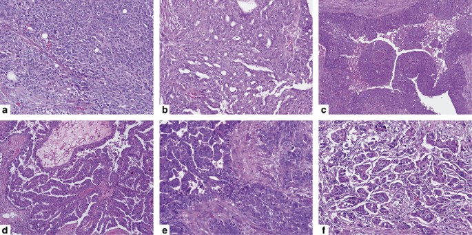 Invasion Patterns Of Metastatic High Grade Serous Carcinoma Of Ovary Or Fallopian Tube Associated With Brca Deficiency Modern Pathology