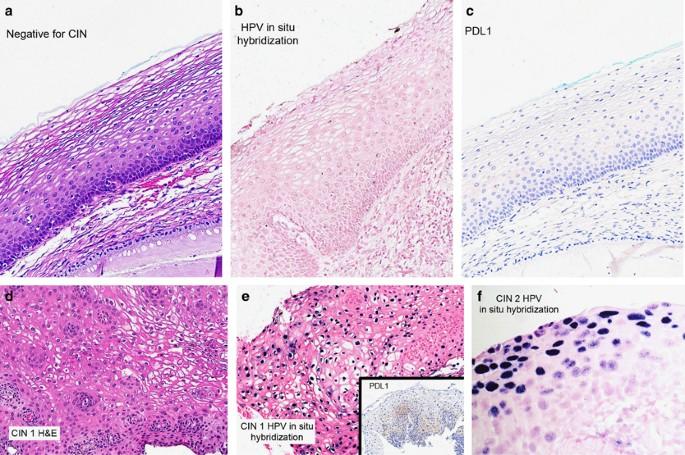 hpv vírus cin 2