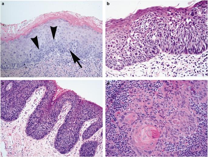 squamous papilloma with severe dysplasia)
