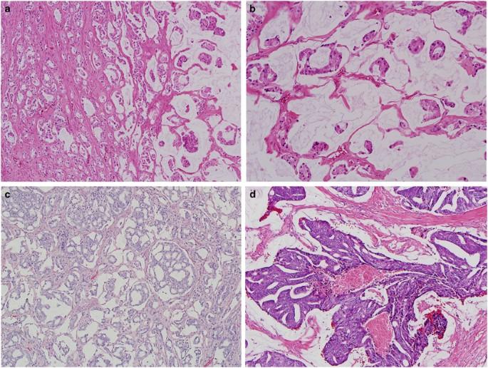 adenocarcinoma prostate gleason 6( 33) Milyen segítséget nyújt a prosztatitisben
