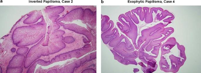 sinonasal inverted papilloma
