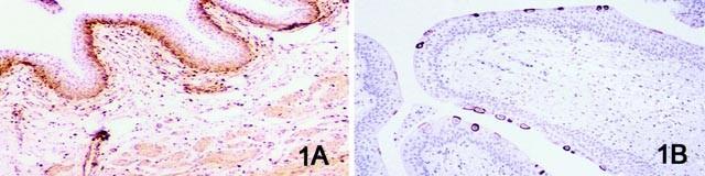 Urothelialis papilloma ck20 Nyelv papilloma vírussal