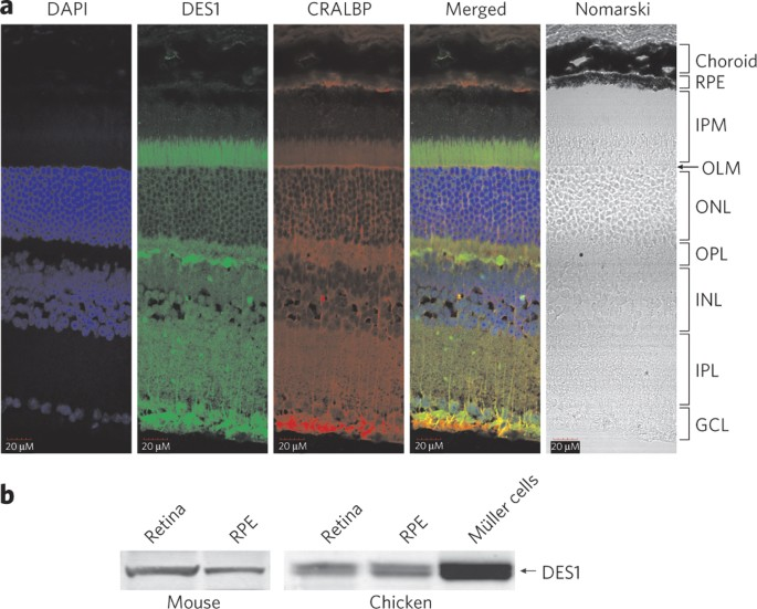 Identification of DES1 as a vitamin A isomerase in Mller glial ...