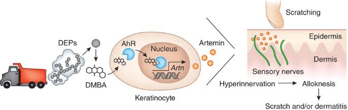 atopic dermatitis nature article