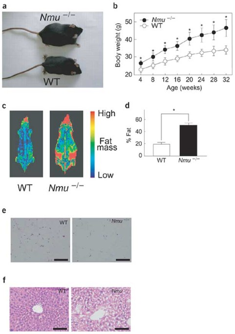 Neuromedin U has a novel anorexigenic effect independent of