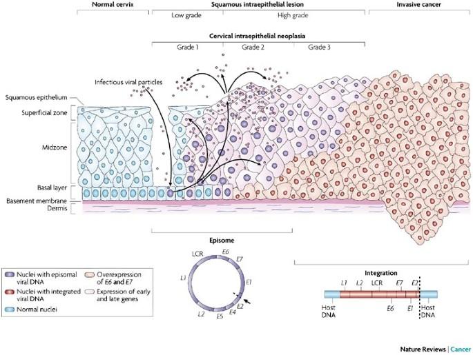 human papillomavirus and neoplasia)