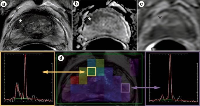 Atlas of Multiparametric Prostate MRI: Joan C. Vilanova > Könyv | Libristo