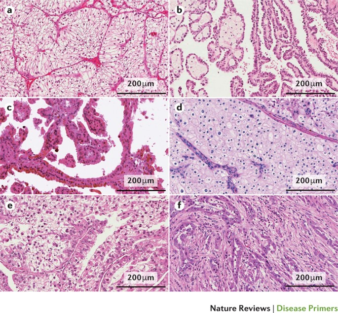 Renal Cell Carcinoma Nature Reviews Disease Primers