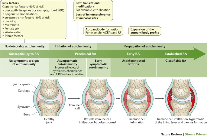 Rheumatoid Arthritis Nature Reviews Disease Primers
